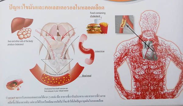 betaglucan-maho_cholesterol