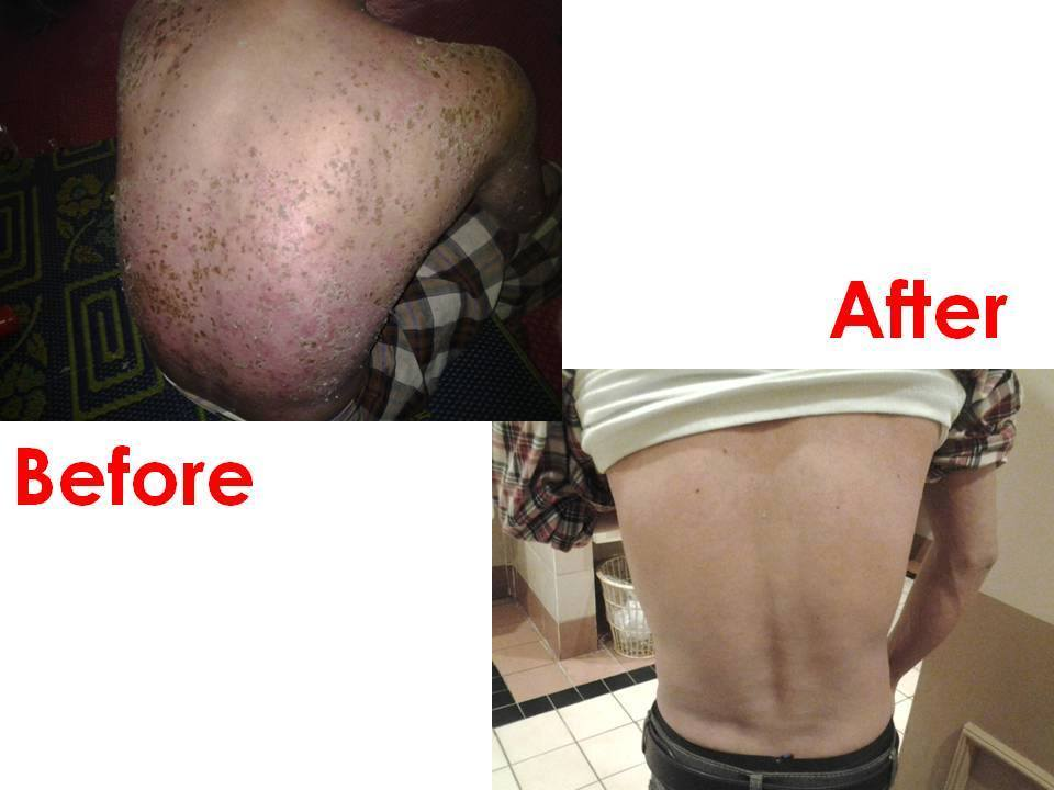 Case review Psoriasis 2_betaglucan-maho