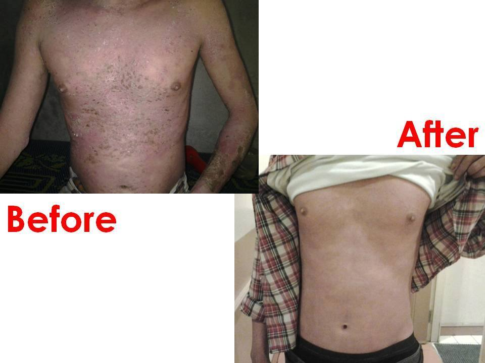 Case review Psoriasis 3_betaglucan-maho