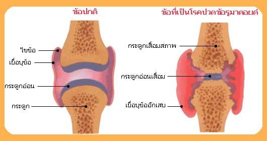 Rheumatoid Arthritis_maho betaglucan
